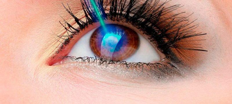 Implante de Anel a Laser